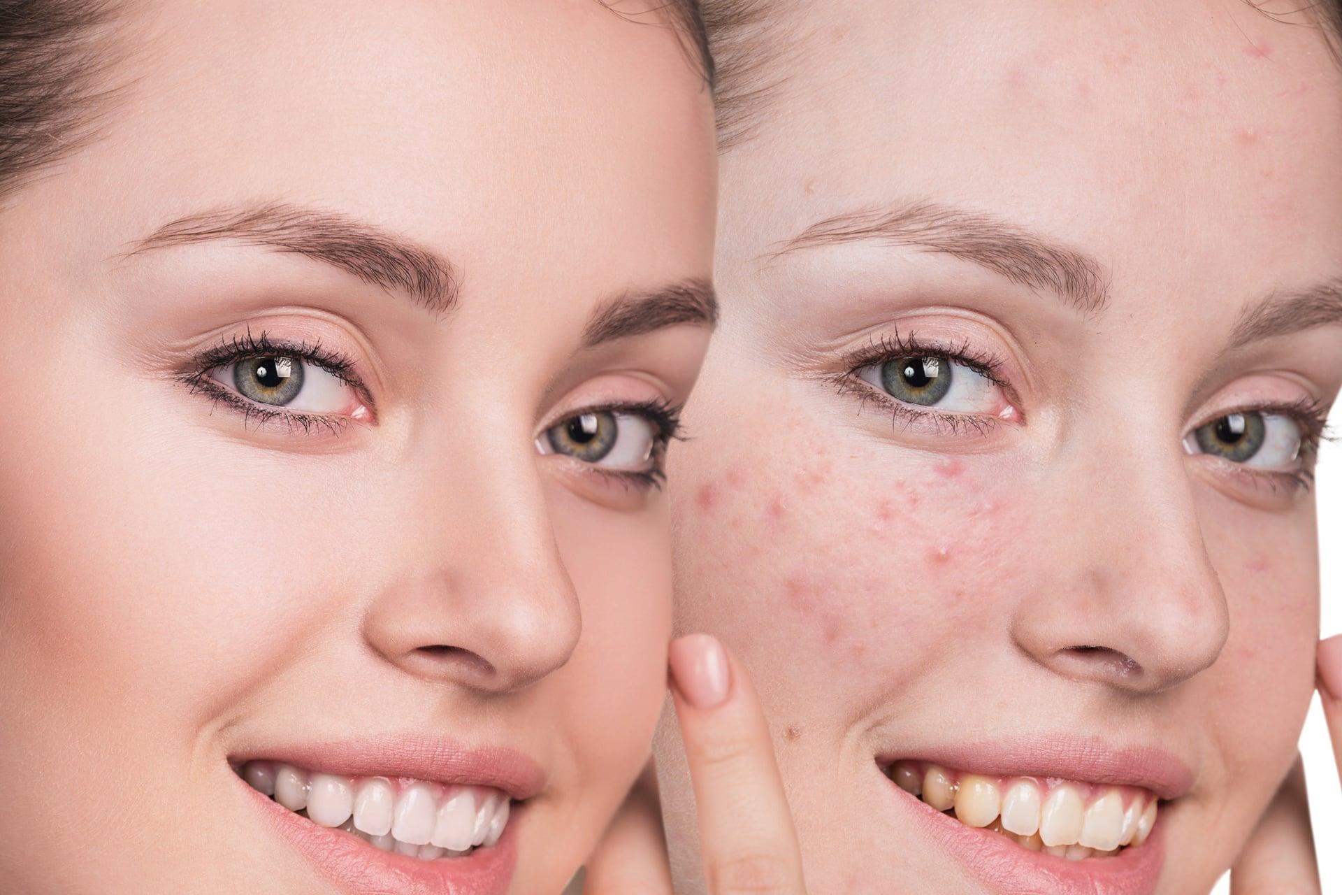 Dermatologische consultaties & Dermato-cosmetiek - Domaine La Butte aux Bois